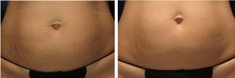 Sublative Stretch marks tummy (2)