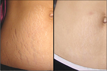 Sublative stretch marks tummy 2 (2)