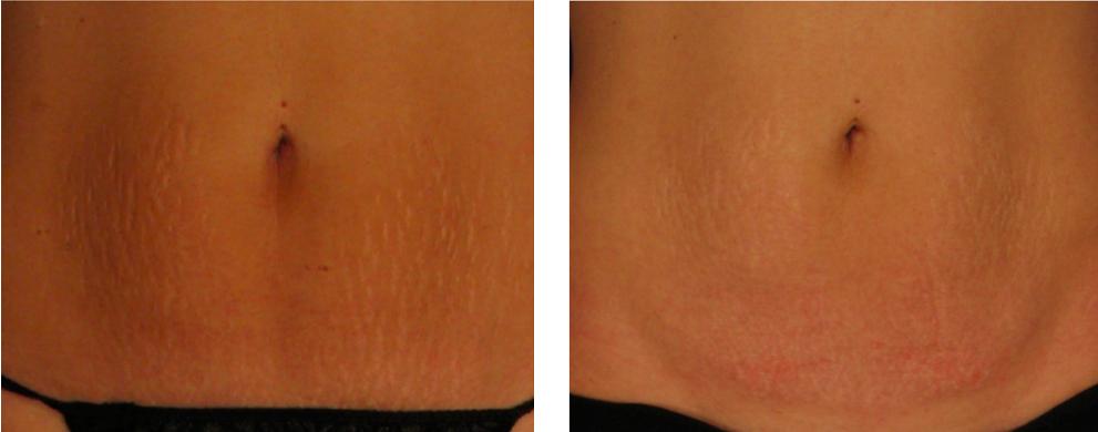 Sublative stretch marks tummy 3 (2)
